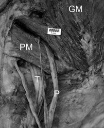 Piriforme : connaître ses variations anatomiques