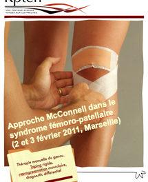 L'approche McConnell : le genou