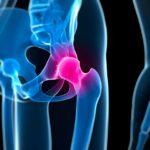 Nouvelles preuves en faveur de la Kinésithérapie pour le traitement du conflit de hanche