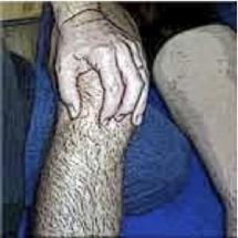 Les rotations passives du genou sont limitées