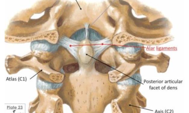 Effet de la section du ligament alaire sur le side bending stress test: une étude cadavérique