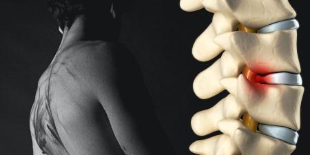 """Sciatique quoi de neuf ? Article du """"journal of Physiothérapy"""" et ressource sur la hernie discale !"""