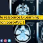 Nouvelle ressource clinique sur Actukine-CRC  : l'évaluation post AVC