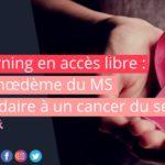 E-Learning en accès libre : Lymphœdème du membre supérieur secondaire à un cancer du sein