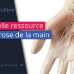 Nouvelle ressource : l'arthrose de la main !